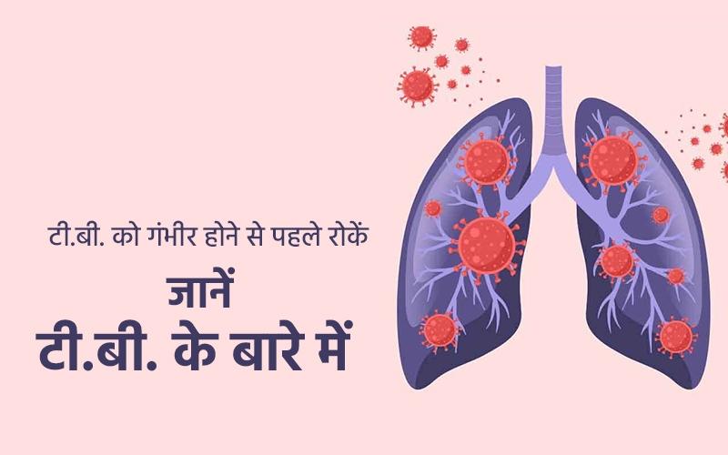 TUBERCULOSIS | WORLD TB DAY | विश्व क्षयरोग दिवस पर जानें टीबी के बारे में, पढ़ें लक्षण व बचाव