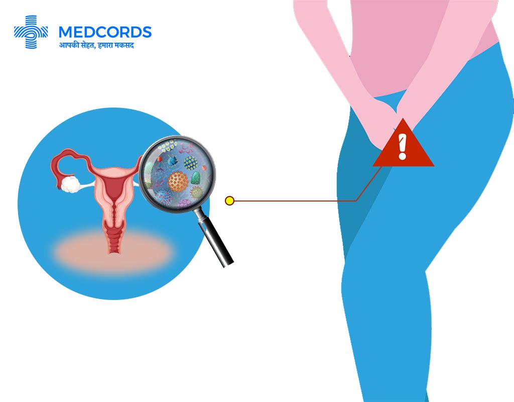 योनि यीस्ट संक्रमण के कारण और लक्षण