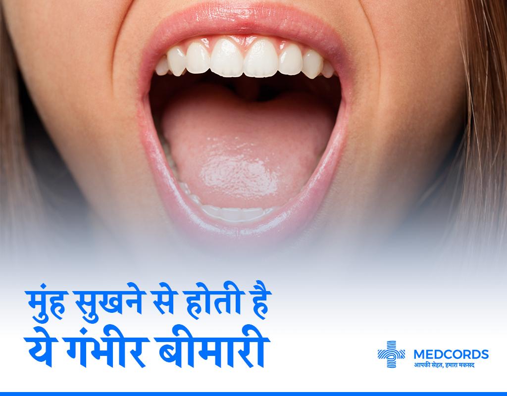 मुंह सूखने की समस्या से पाएं मुक्ति