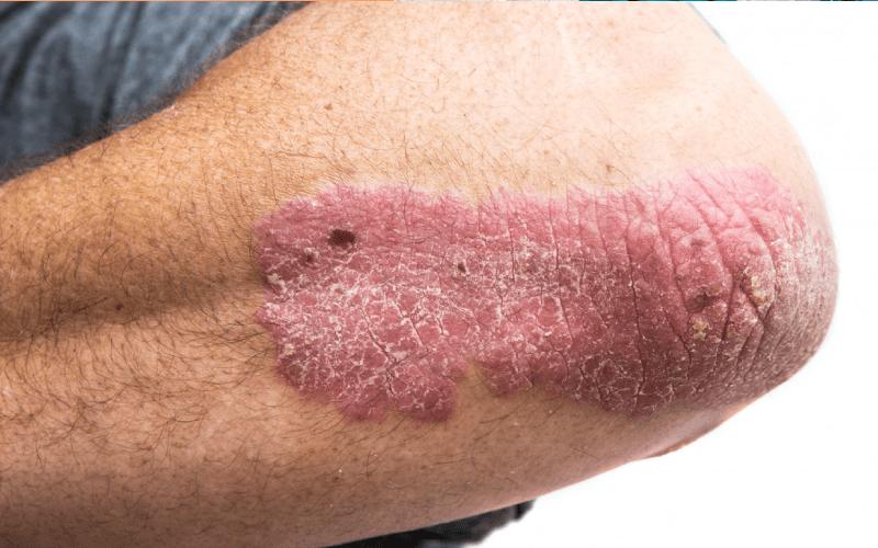 चर्म रोग के प्रकार, लक्षण और उपाय