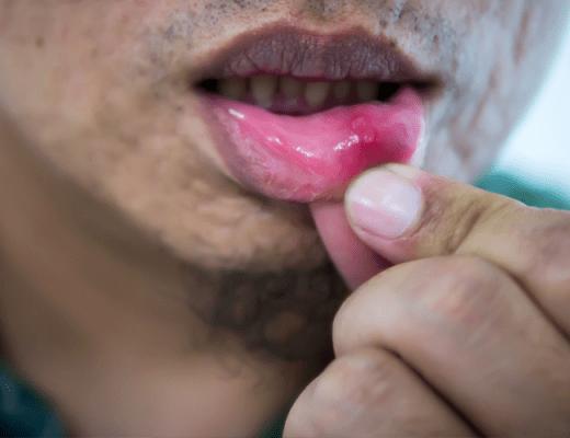 मुंह के छाले के कारण ,लक्षण और घरेलू उपाय
