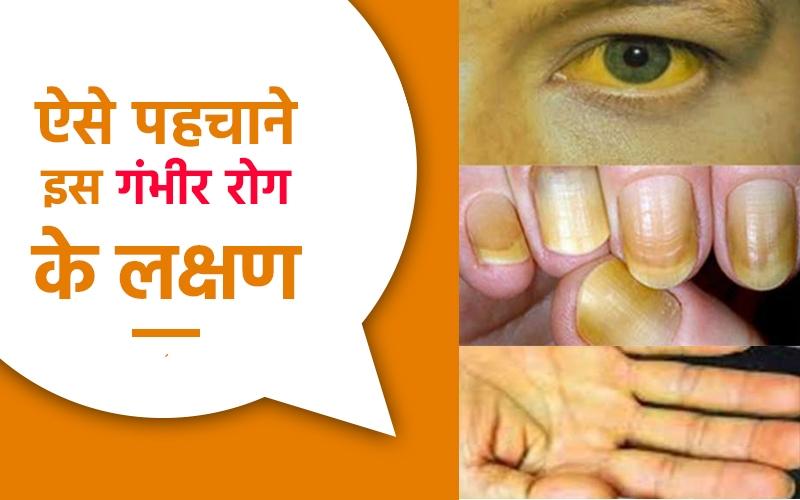 पीलिया क्या है, पीलिया के कारण, लक्षण और बचाव के उपाय