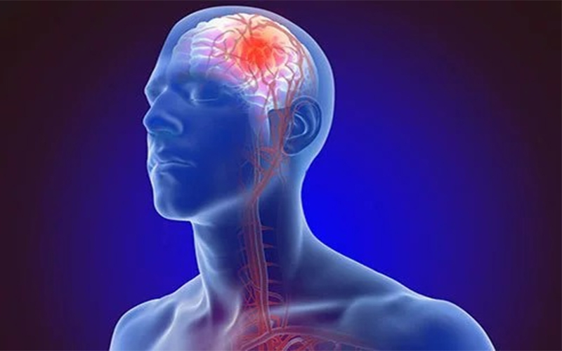 brain stroke symptoms and prevention