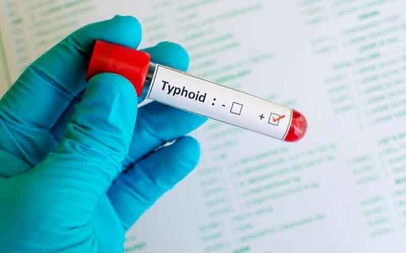 टाइफाइड के लक्षण, टाइफाइड में क्या खाएं और क्या ना खाएं | Daily Health Tip | 05 June 2020 | AAYU App