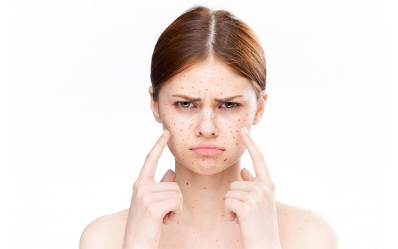 skin related problem