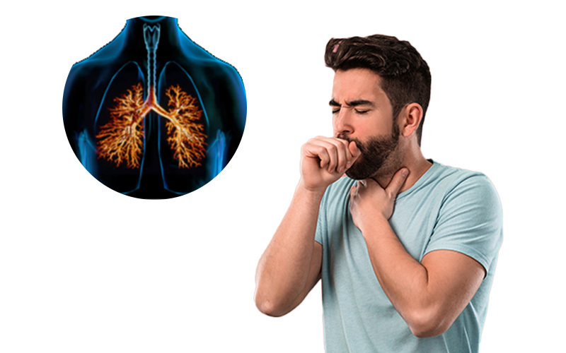 Bronchitis