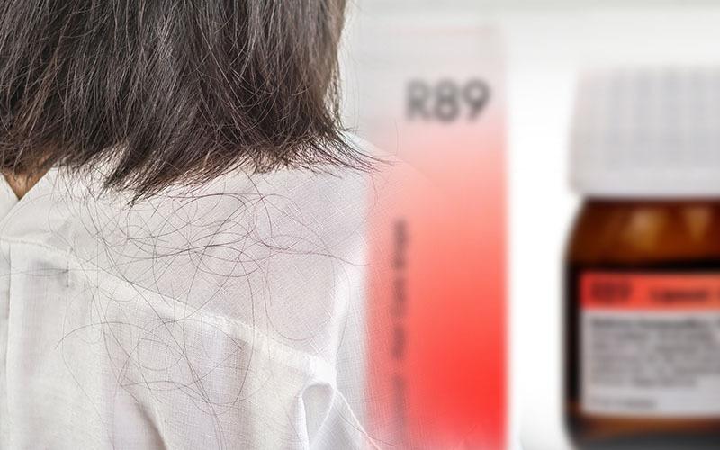 बालों के झड़ने से बचाने की होमियोपैथिक दवाएं: Homeopathic Medicine in Hindi: