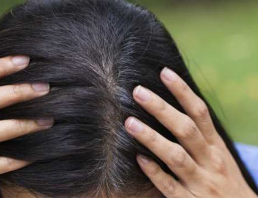 how to get rid from white hairs