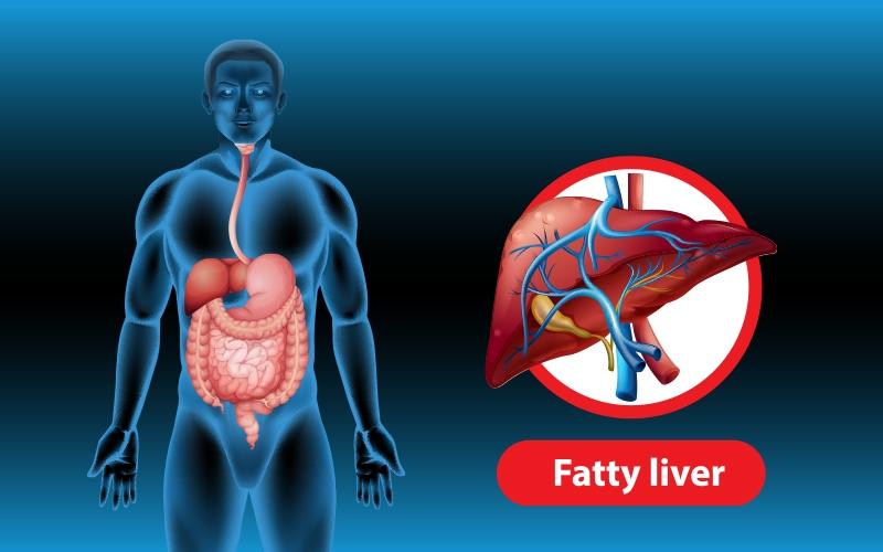 फैटी लिवर के लक्षण, बचाव, कारण व  उपचार  | Daily Health Tip | Aayu App