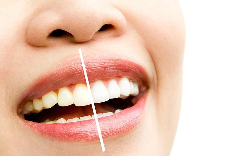 how to make yellow teeth white