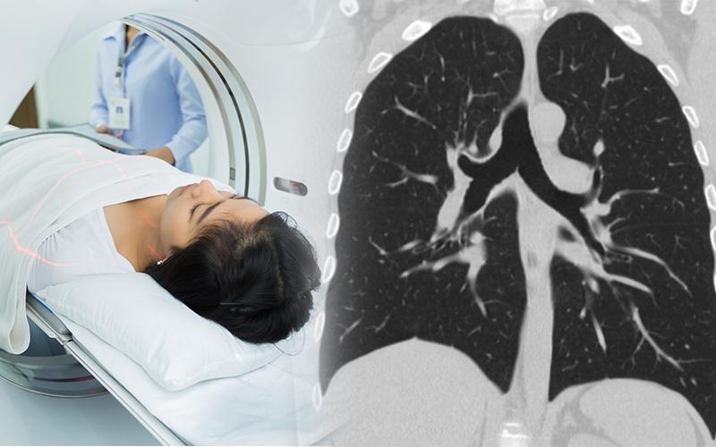 सीटी स्कैन CT-Scan