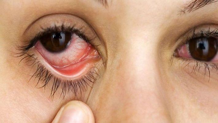 ड्राई आई सिंड्रोम Dry eye syndrome