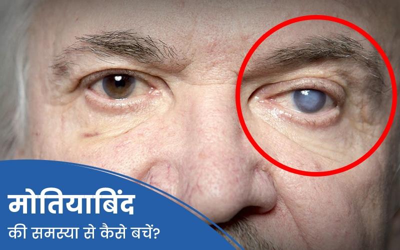 मोतियाबिंद क्या है ? जानें, इसके कारण, लक्षण और उपचार ? Cataract in Hindi