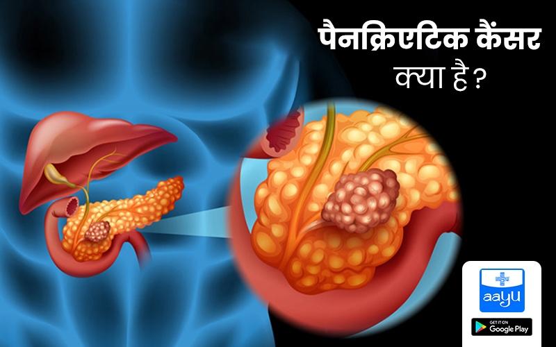 पैनक्रिएटिक कैंसर (Pancreatic Cancer) क्या है? लक्षण और उपचार