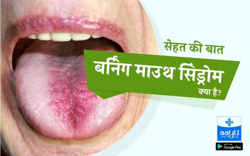 मुँह में जलन क्यों होती है, लक्षण, कारण, उपचार | Daily Health Tip | Aayu App