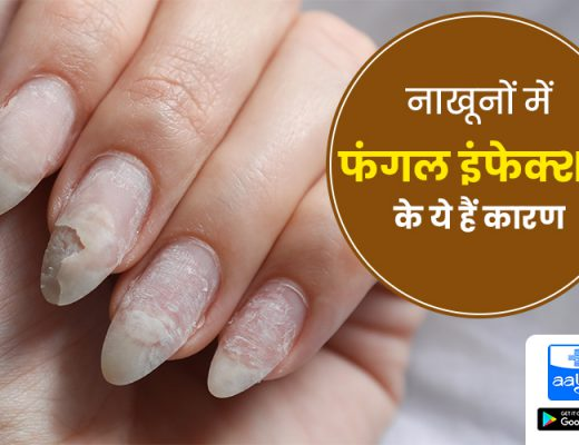 fungal infection in nails