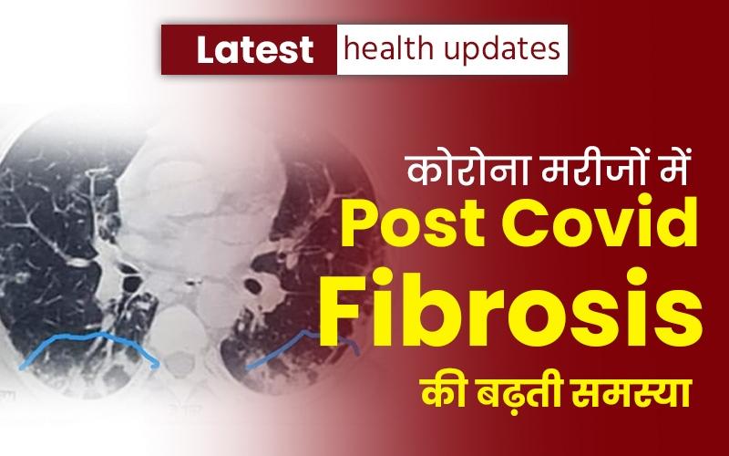 Latest health updates: कोरोना मरीजों में Post covid fibrosis की बढ़ती समस्या