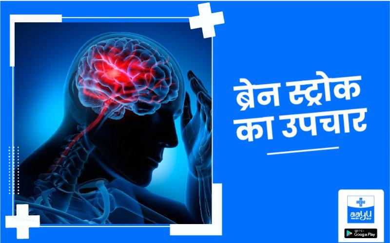 what is brain stroke