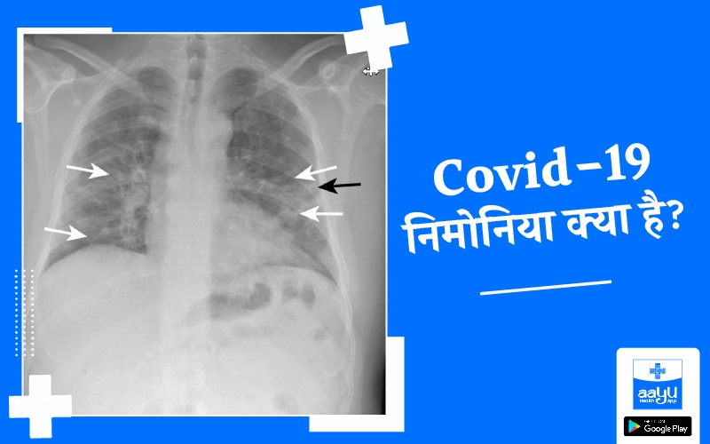 कोविड-19 निमोनिया क्या है, कोविड निमोनिया का इलाज | Covid Pneumonia, Covid Pneumonia Treatment