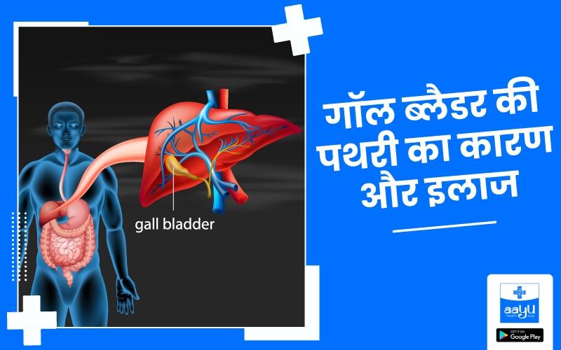 Gall Bladder Stone: पित्ताशय की थैली में पथरी का कारण, लक्षण और इलाज जानें