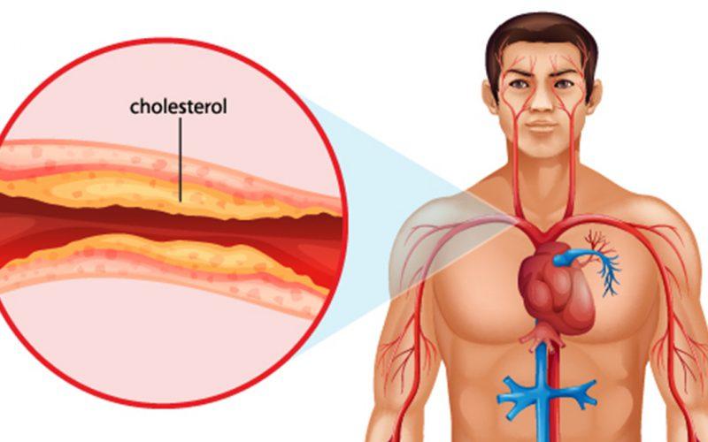 कोलेस्ट्रॉल की वजह क्या है