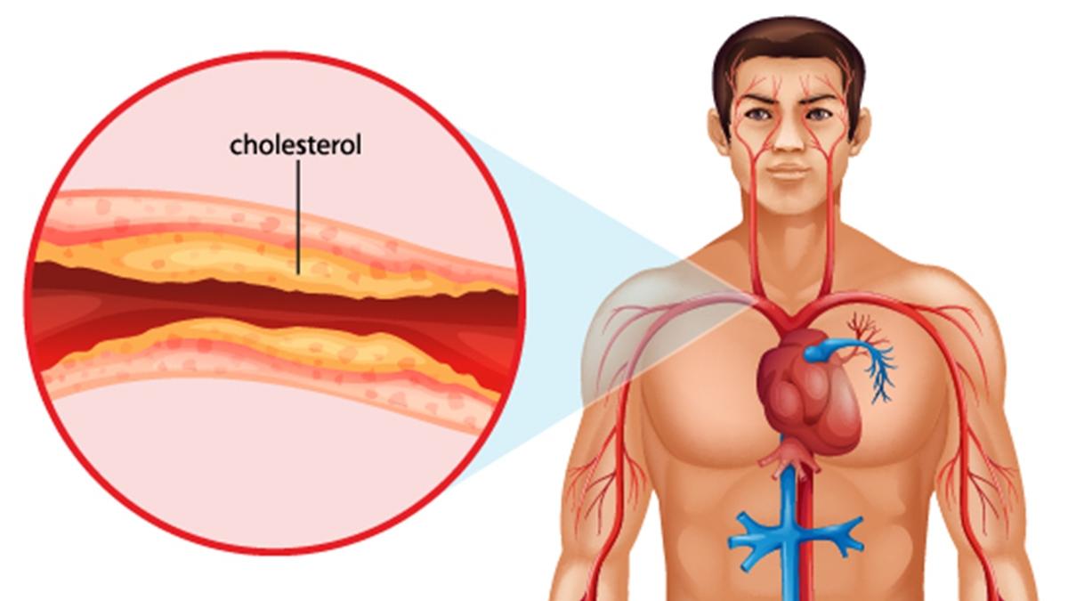 कोलेस्ट्रॉल की वजह क्या है? | Reason of Cholestrol in Hindi