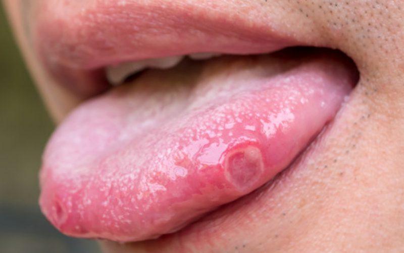 मुँह के कैंसर का लक्षण