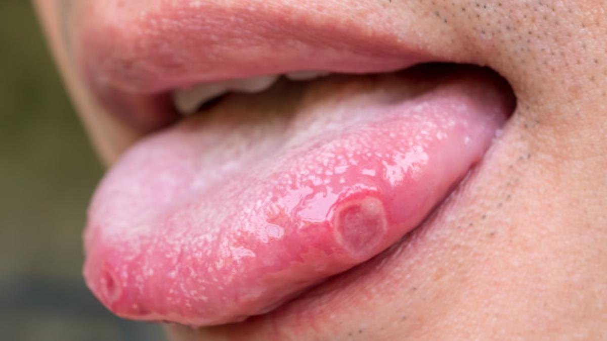मुँह के कैंसर का लक्षण दिखें तो ना करें नजरअंदाज   Oral Cancer Symptoms in Hindi