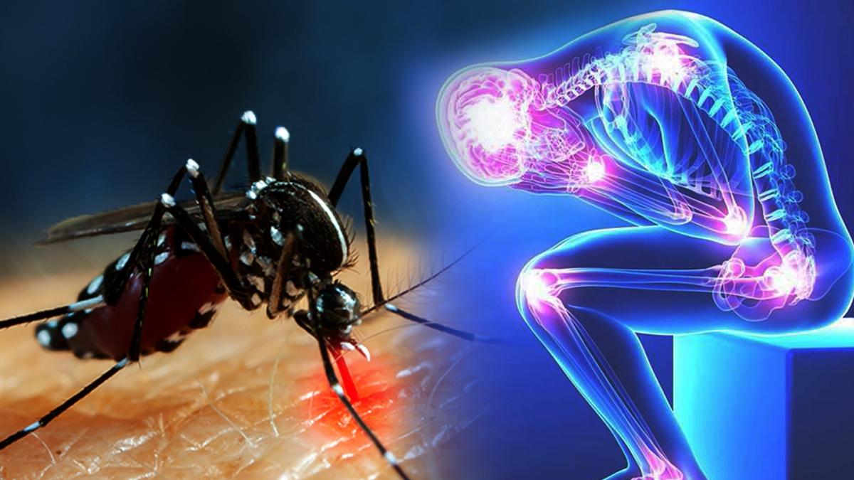 chikungunya symptoms: चिकनगुनिया के लक्षण और रोकथाम के उपाय |