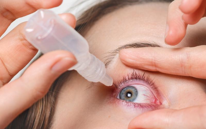 आंखों की एलर्जी का घरेलू उपाय जानें