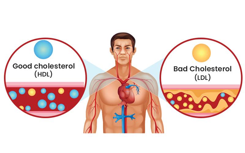 एलडीएल (LDL) कोलेस्ट्रॉल और एचडीएल (HDL) कोलेस्ट्रॉल सुधारने के 3 आसान तरीके