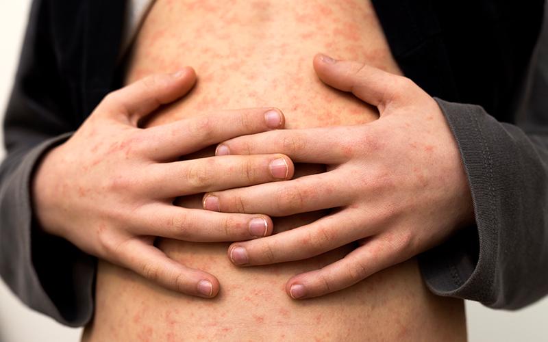 Measles Symptoms and Treatment: खसरा रोग के कारण, लक्षण और इलाज के बारे में जानें