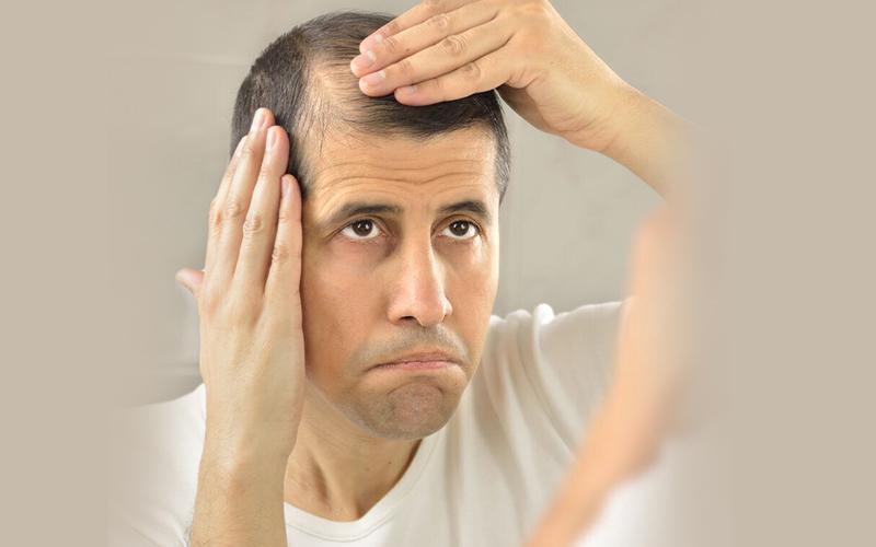 how to stop hair fall: पुरुषों में बालों को झड़ने से रोकने के 5 आसान उपाय जानें