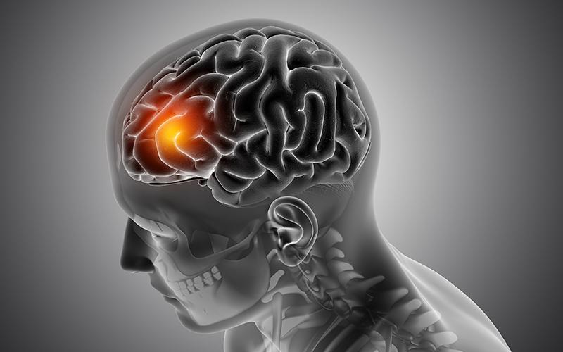 Brain Tumor: ब्रेन ट्यूमर से रहें सावधान, जानिये क्या हैं लक्षण, कारण, बचाव और समाधान