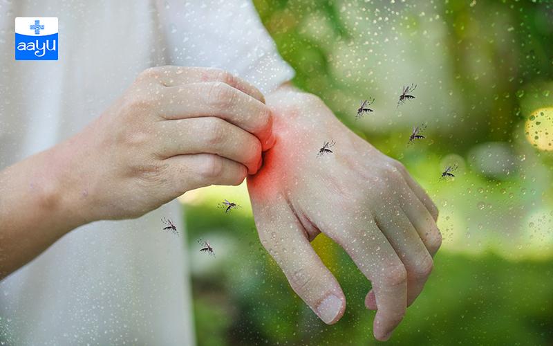 Ways to get Rid of Mosquitoes: बरसात में पैदा होने वाले मच्छरों से बचने के उपाय